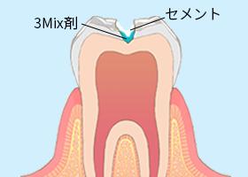 虫歯治療2