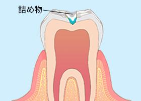虫歯治療3