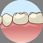 歯フラップ手術1
