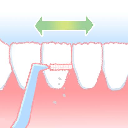 歯間ブラシの使い方1