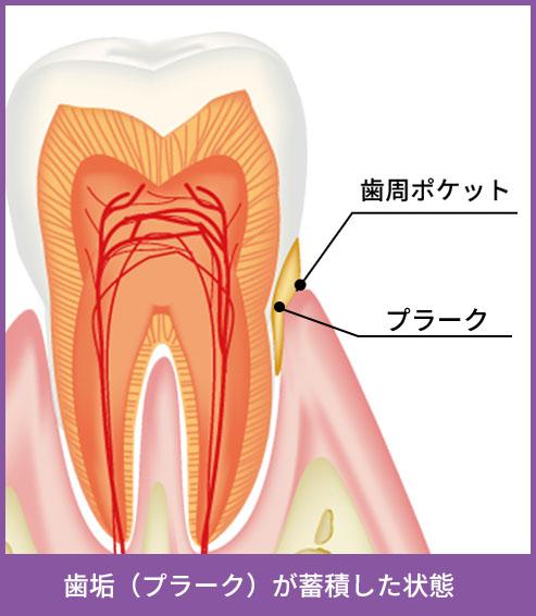 歯垢が蓄積した状態
